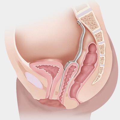 腹腔鏡下仙骨膣メッシュ固定術